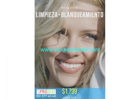 Promoción: Blanqueamiento+Limpieza Dental
